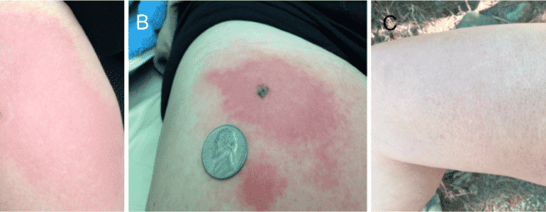 Ozone therapy as a primary and sole treatment for acute bacterial infection: case report